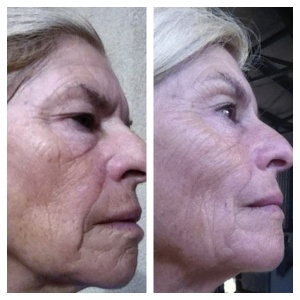 NeriumAD Before and After Picture 4