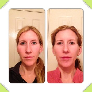 NeriumAD Before and After Picture